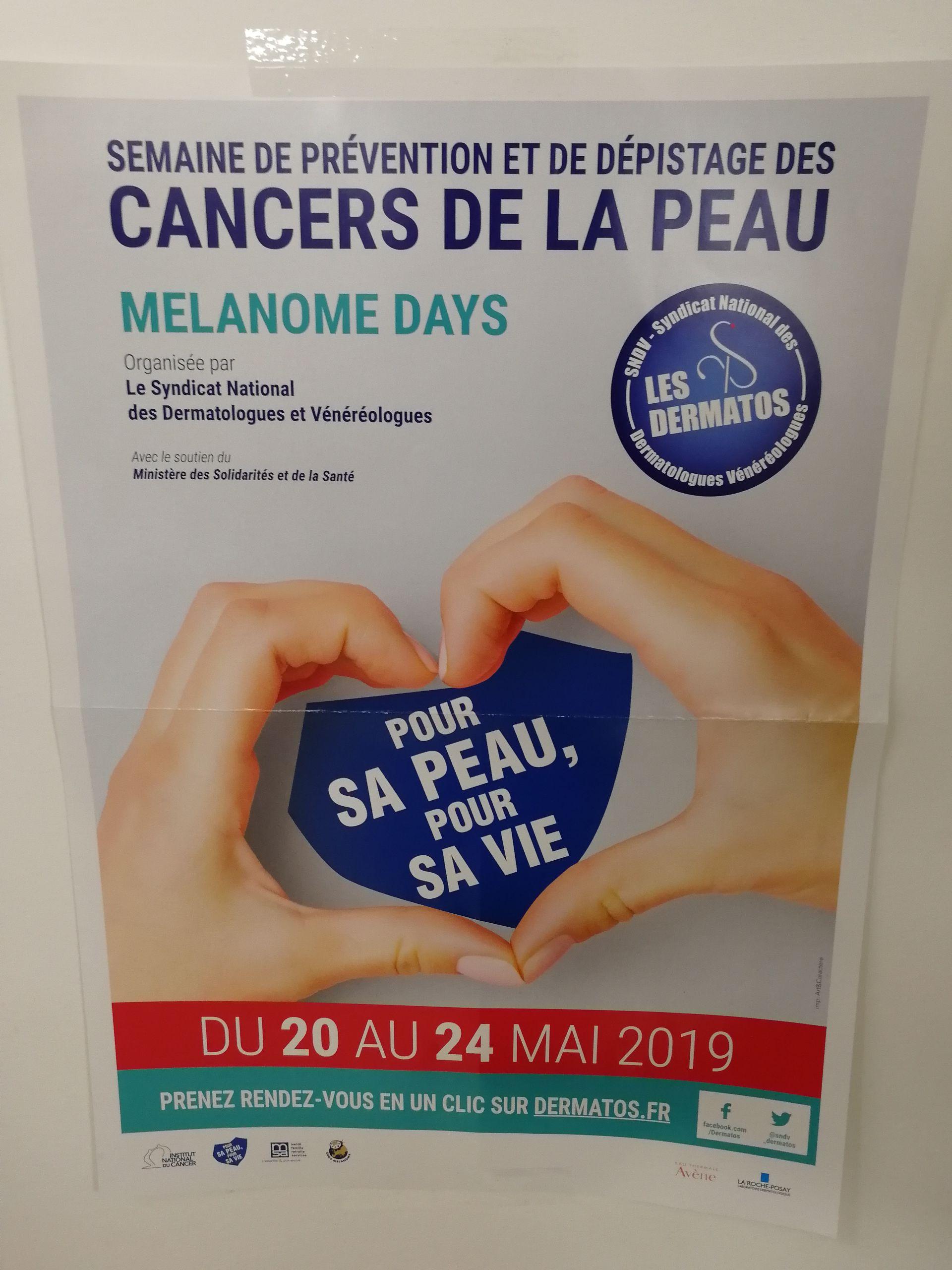 Dépistage du cancer de la peau gratuit