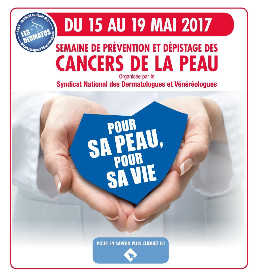 Dépistage du cancer de la peau gratuit du 15 au 19 Mai 2017